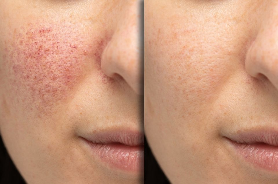 Hidden Self-Isolation Beauty Tricks That Every Woman Should Know! Part 3: SKIN